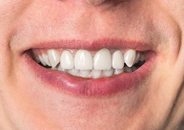After-Odontoiatria estetica