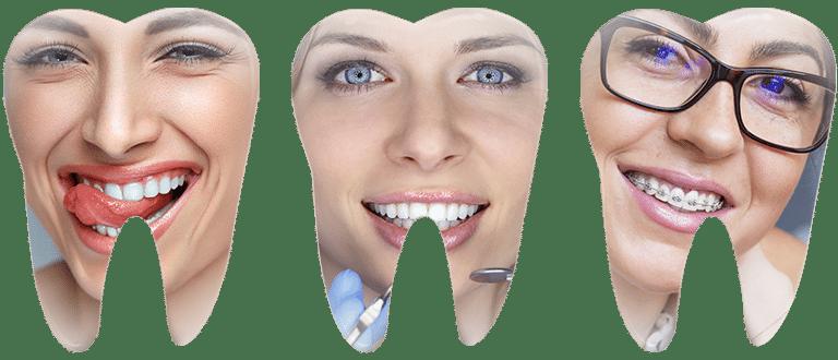immagine denti roma