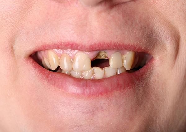 Before-Odontoiatria estetica