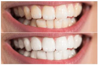 sbiancamento denti priima e dopo