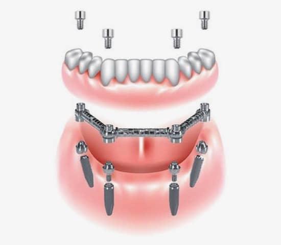 implantologia complessa